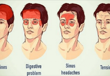 Sinus Headaches