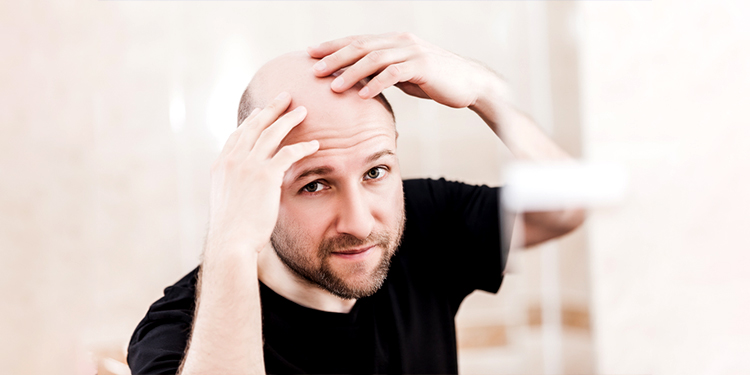 Hair Loss Treatment - Cause & Prevention - Latest News Update